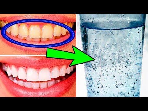 Как Быстро Отбелить Зубы В Домашних Условиях 10 способов photo