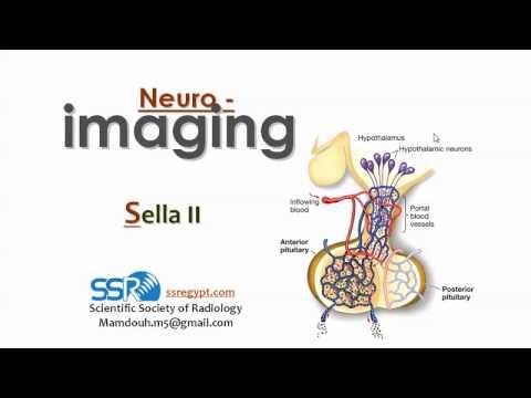 Imaging of Sella (II) - Prof Dr. Mamdouh Mahfouz (In Arabic)