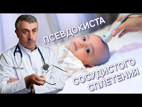 Псевдокиста сосудистого сплетения - Доктор Комаровский