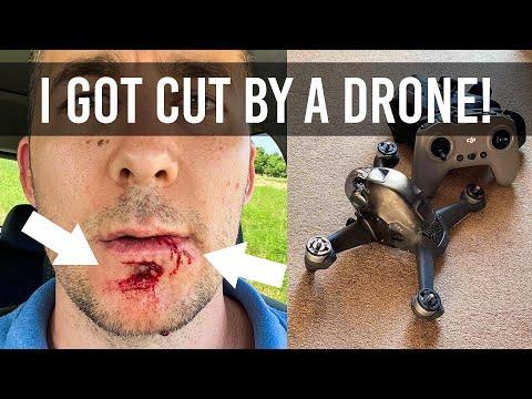 DJI FPV drone cut my face! I got extremely lucky! - UCdf6WtVkThVyEFARiUbr5yQ