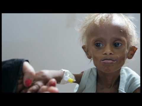 Trẻ em Yemen chết đói do chiến tranh