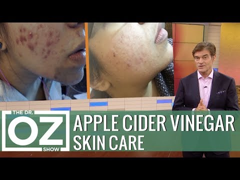 The Latest Apple Cider Vinegar Trend - UCc8cHxAZ3jwWkrrDyaLwDUw