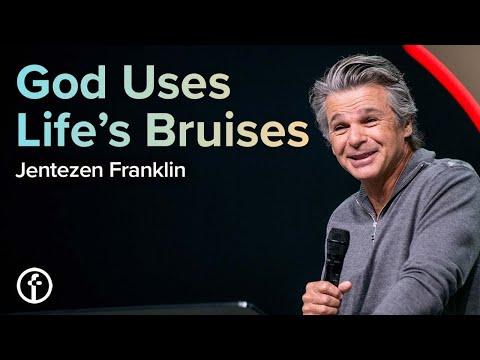 God Uses Lifes Bruises  Pastor Jentezen Franklin
