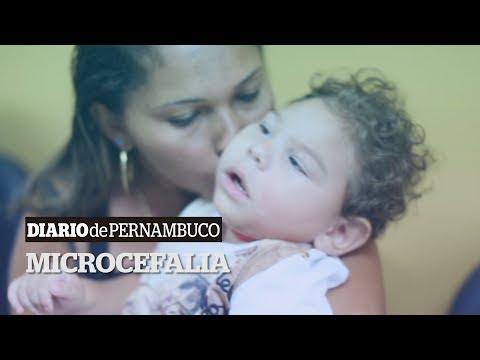 Crianças com microcefalia de 25 municípios são atendidas em Petrolina