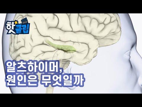 알츠하이머의 원인은 무엇일까? / YTN 사이언스