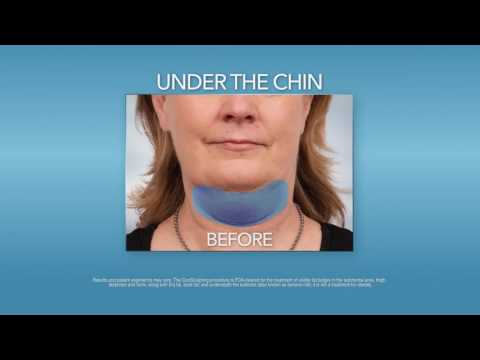 Freeze Your Double Chin Away with CoolSculpting!