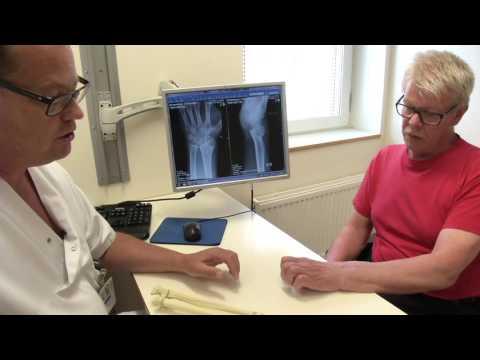 Första operationen med unik handledsprotes
