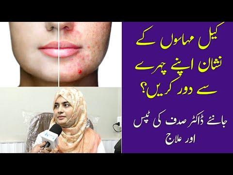 Keel Muhase Ka Gharelu Ilaj | Acne Scar Removal | Acne Treatment at Home