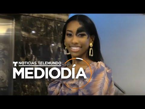 Modelo colombiana supera los prejuicios de un lunar en su rostro y se consagra | Noticias Telemundo