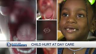 State investigating after 3-year-old loses teeth in unexplained incident at Cleveland daycare center