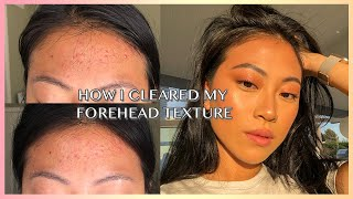 HOW TO REALLY GET RID OF FOREHEAD ACNE / TEXTURE | Christine Le