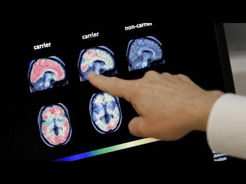 """Engedélyeztek egy új <span class=""""search-everything-highlight-color"""" style=""""background-color:orange"""">Alzheimer</span>-gyógyszert az USA-ban, de egyes szakértők szerint nem kellett voln…"""