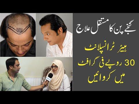 Fut Hair Transplant in Pakistan | Baldness Treatment | Hair Transplant Results