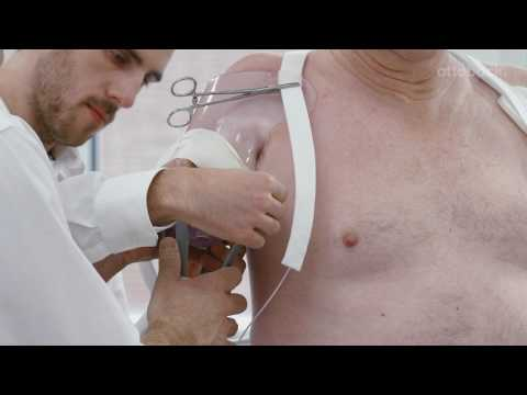 Production of Transhumeral Body-Powered Trial