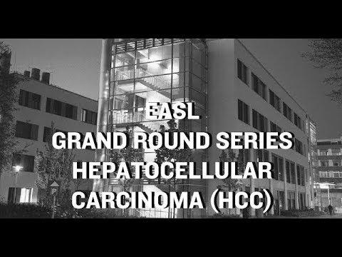EASL Grand Round Series: Hepatocellular Carcinoma (HCC)