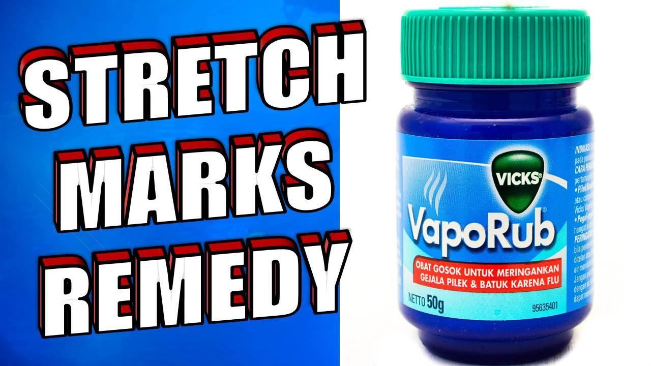 How to Remove Stretch Marks Using Vicks Vaporub   AudioMania lt