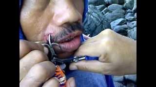Bilderesultat for people hurt with fish hook