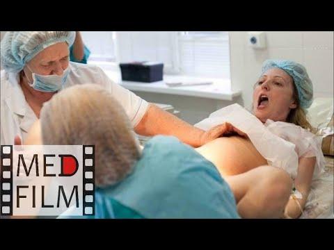 Роды. Перидуральная (эпидуральная) анестезия © Сhildbirth. Peridural anesthesia photo